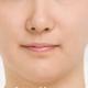 我觉得做了双下巴之后就是整个脸型都变的好看了,然后两边脸觉得变瘦了,反正就是觉得小小的一个下巴就改变...