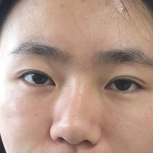 在泰国的云南妹到重庆找曹院割双眼皮