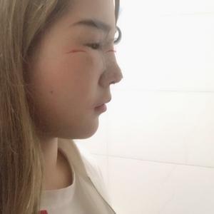 鼻综合术后分享