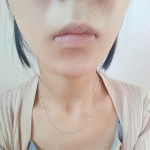 玻尿酸三支下巴效果