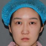 【来美安双眼皮修复加内眼角修复第五天】其实已经做了手术挺久了,之前一直恢...
