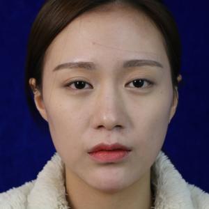 鼻综合+双眼皮
