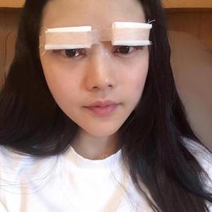 艺星-双眼皮