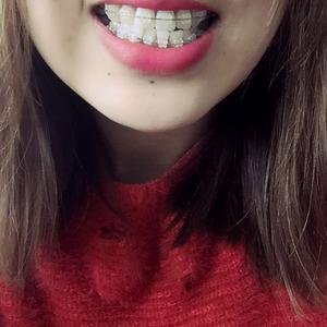 不知不觉的矫正牙齿已经204天了,牙齿也是越来越好看,给大家上传一个小视频,方便大家看效果,效果我很满意,感谢华美~感谢...