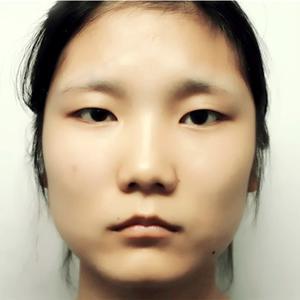 福州 双眼皮 上睑下垂手术