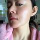 北京京韩自体脂肪移植面部填充,做自体脂肪填充手术一个多月以来,经常被身边的朋友同事夸赞,说我皮肤好啊...