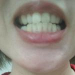 牙齿已经做了一段时间了,现在恢复的很好,牙龈颜色也不那么难看了,越来越好