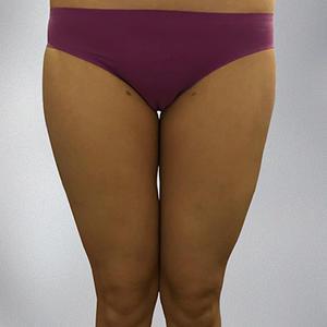 S聚能定向吸脂大腿环吸