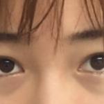 眼袋的问题一直困扰我很久了,有眼袋显得没有精神而且显老,很多时候都不敢...