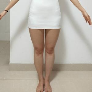 成都军大吸脂瘦大腿