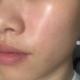 之前脸上的法令纹特别明显,在蛋白医生的建议下,针对性的做了热玛吉,治疗非常有针对性,因为嘴角纹路深重...