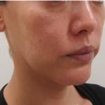瘦脸针一个半月,改变还可以了,还好当时听医生的话打了100单位的,不然还...