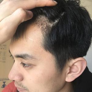 術后15天,看著自己的頭發正在一點點的長出來,很開心啊,畢竟那么多年了,還有我丟失的一絲帥氣終于給補上了,那就是滿分啦,...