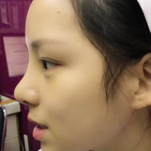鼻部综合整形