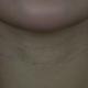 北京京韩明星背后抗衰老专家Jimmy老师告诉我颈纹是按照疗程注射的,一个疗程注射后效果会很好,而且可以维...
