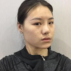 【日记】玻尿酸填法令纹 额头