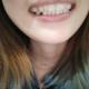 这几天一直在忙都忘记来写了! 我是属于牙齿前凸的 最主要的还是门牙 好多朋友都建议我来做矫正 一直都害怕...