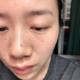 目前距离我点痣已经25天了,疤痕趋于平整,由淡红转为浅浅的粉褐色,全部长成正常皮肤在❗️6-8个月❗️这...