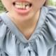 今天去第二次复诊了,之前拔牙的那个牙洞已经收紧了,没有了,医生说我有点牙周病,这次去的话,就把皮筋拿...