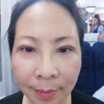 今天是做完手术的第1天,做的是眼皮松弛矫正,之前眼睛就是耷拉着,虽然还没...