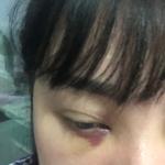 今天终于把眼袋手术做了.好早以前就想做不敢做怕疼怕做不好毁容,因为张医生...
