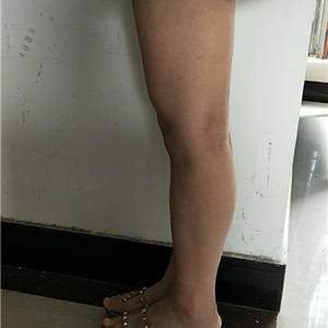 福州 大腿吸脂瘦身