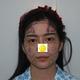 哈喽大家好!今天在北京京韩做了自体脂肪填充全脸,从三年之前就在关注京韩了,学习到了不少整形和审美知识...