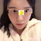 北京京韩自体脂肪填充全脸VST艺术面雕,术后3个月对比照片案例。跟之前的状态还是蛮接近了,因为也没有吸收...