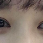 其实我的朋友都说我的眼睛不丑,但是我觉得单眼皮真心不好看,纠结了好久我就...