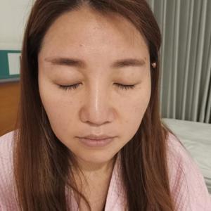 鼻综合+耳软骨填鼻尖+鼻中隔