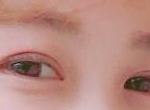 看,我的迷离双眼皮,有没有电到你呢,哈哈。现在已经术后50天了,恢复的差...