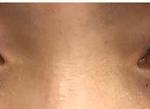 大家可以看我术前的眼睛,已经是双眼皮了,但是双的好单薄,而且眼睛是圆圆的...