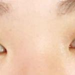 从小我的眼睛是双眼皮,但最大的问题就是眼睛有点小,就想做一个开眼角改善一...