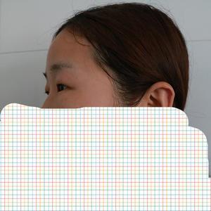 双眼皮+开眼角日记本