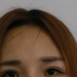 眉弓处比较低,专业点说应该是叫凹陷,看上去眉毛也比较平,注射了玻尿酸...