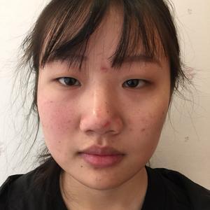 我毕业啦终于可以达成啦~做双眼皮的时候还是小屁孩一个,我就一直坚持要做。现在看来还是很明智的嘛。眼睛现在是不是很自然,上了点妆哦,对了我化妆也进步了不少,现在变化是不是很大哈。满意给医生点赞!