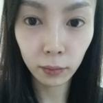 民航广州医院+自体脂肪填充面部第一天由于我面部不是肉肉那...