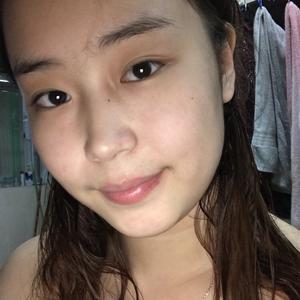 北京炫美整形面部吸脂下巴假体变仙女