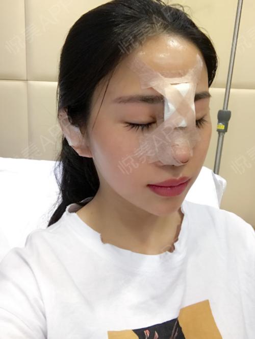 鼻综合术后3天了,即使鼻子现在贴着鼻夹还看着