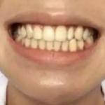 记得从小时候开始牙齿就很黄,当时太小不知道是什么原因导致,门牙尤其黄,记...