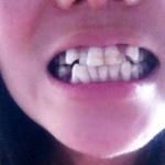 """从小我的牙齿就不整齐,小时候有的人就给我取绰号""""龅牙妹"""",虽然是龅牙没错..."""