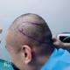 在北京世熙整形医院做的头发种植的手术,医院的院长专门为我做了发际线调整的治疗方案,真没想到世熙的院长...