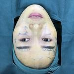 《西安雁塔华旗唯美整形》前两天做的自体脂肪面部,我要做一个精致的女孩纸~...