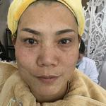 随着年龄增长脸上的雀斑越来越多了,平时基本靠化妆粉底来遮挡,但是现在粉底...