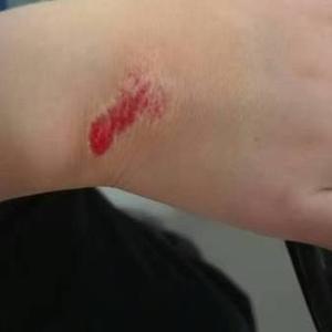 新伤口还能提前防留疤?