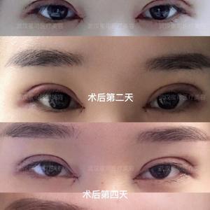 如何让双眼皮手术恢复更自然?