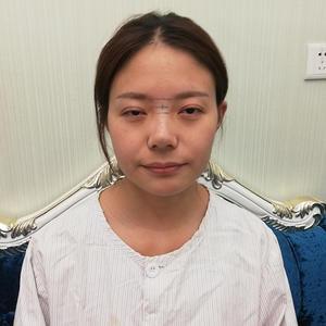 膨体隆鼻术