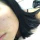以前不长痘痘的我突然爆发出很多痘痘,刚好有打瘦脸针就一起咨询了怎么修复痘印,小姐姐就推荐我做果酸焕肤...