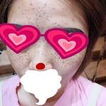 我是先天脸上斑很多,每次化妆遮挡都很苦恼。想着去医院看看能不能可以治疗一...