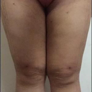吸脂第一次手术-瘦大腿